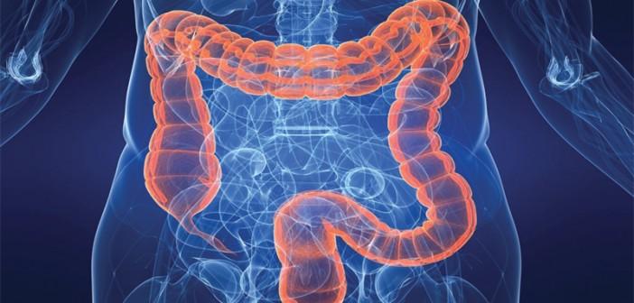 Kolon ve Rektum Kanseri Teşhis, Tedavi, Risk Faktörleri ve Korunma